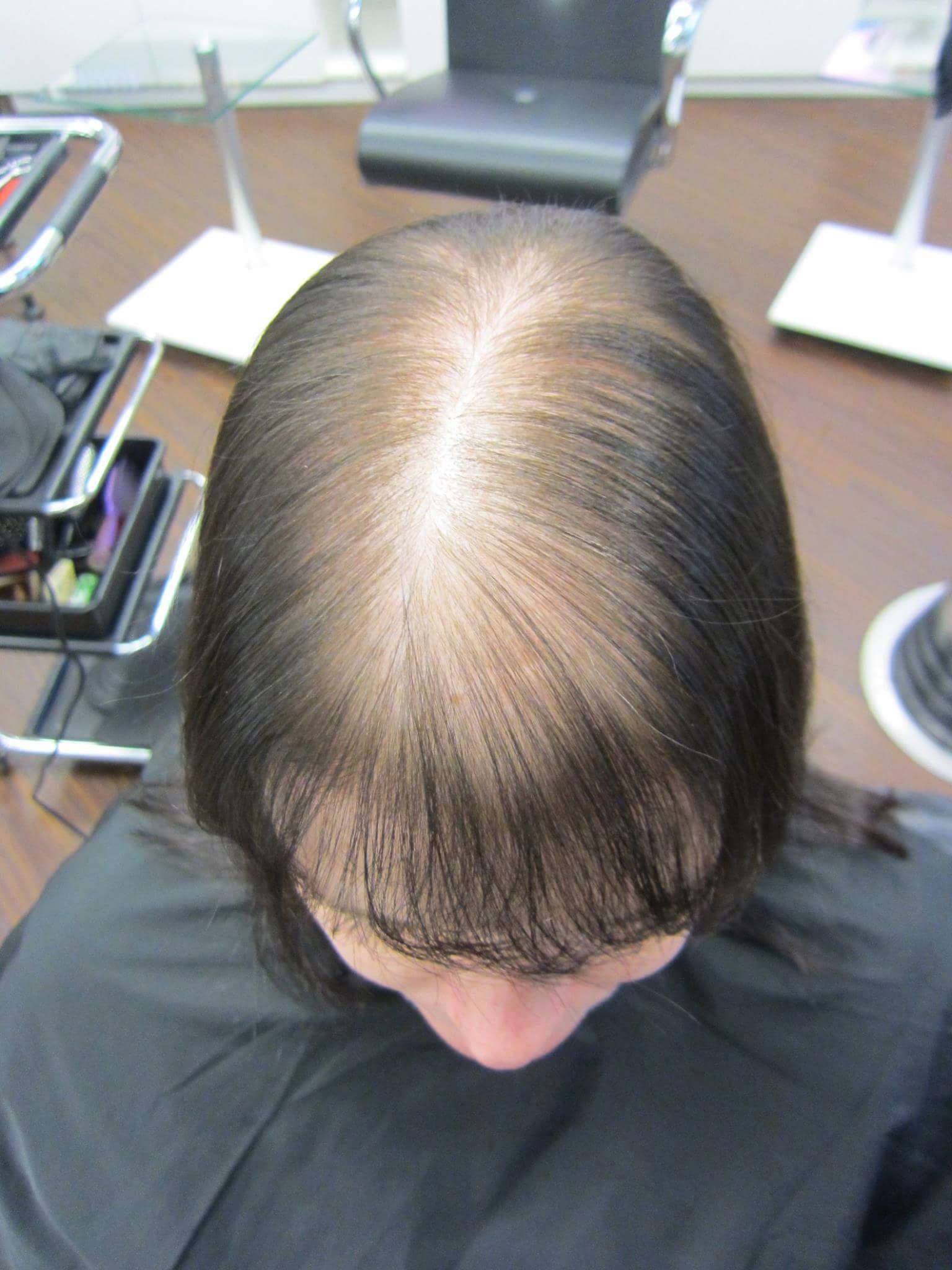hairtalk_hairwear_Haarverdichtung_Bonn_Beispiele_Fotos_Vorher_Nachher_005