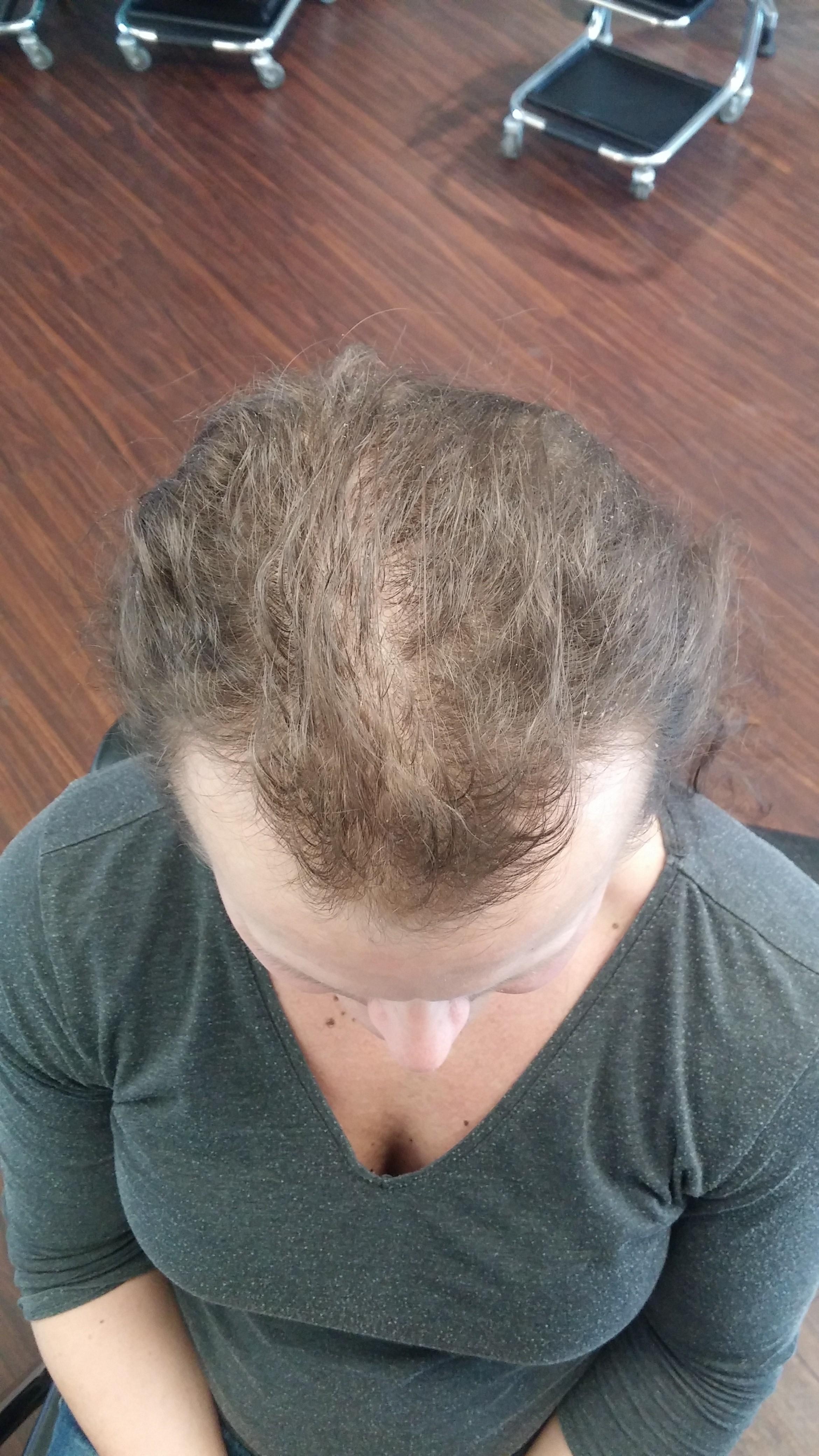 hairtalk_hairwear_Haarverdichtung_Bonn_Beispiele_Fotos_Vorher_Nachher_009