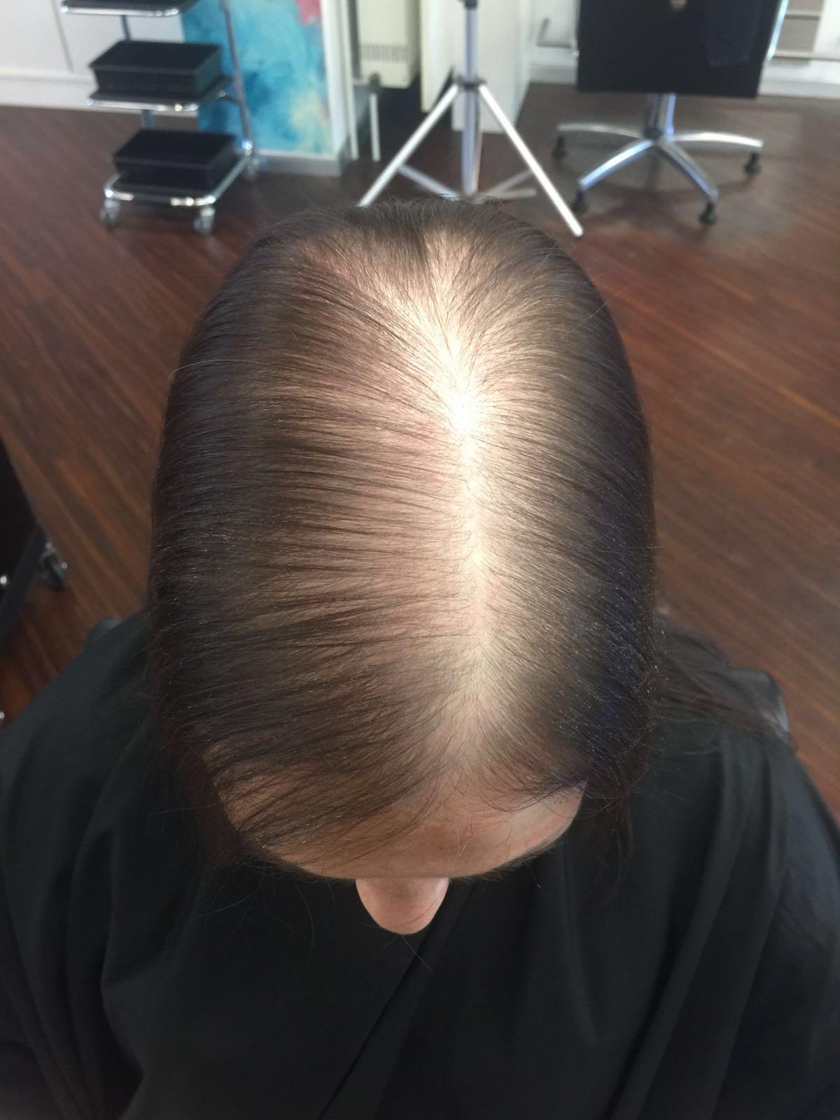 hairtalk_hairwear_Haarverdichtung_Bonn_Beispiele_Fotos_Vorher_Nachher_011