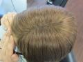 hairtalk_hairwear_Haarverdichtung_Bonn_Beispiele_Fotos_Vorher_Nachher_004